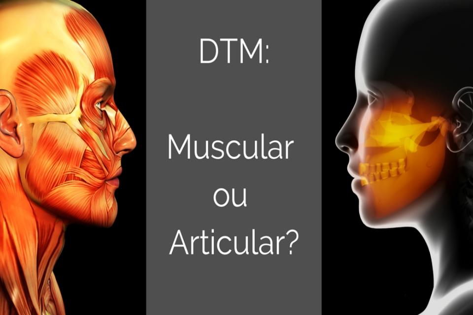 DTM muscular vs DTM articular – Qual dos dois você possui?