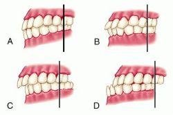 Classificação de Angle:   (A), Oclusão Normal; (B), má oclusão Classe I; (C), má oclusão Classe II; (D), má oclusão Classe III. Observe a posição da cúspide mesial dos molares superiores em relação ao molar inferior em cada tipo de oclusão