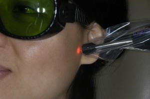 Aplicação de laser na área da ATM
