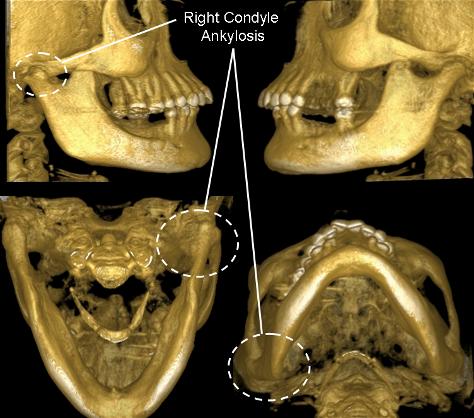 Артроз верхнечелюстного сустава лечение