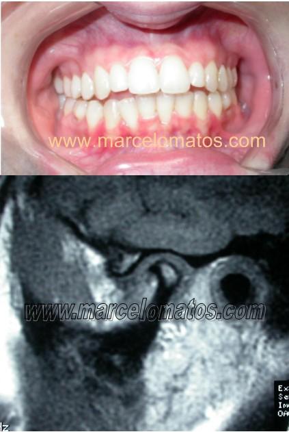 Moridada aberta em paciente que já fez ortodontia mas não foi tratada a lesão da ATM