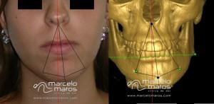 Paciente com desvio do queixo para o lado esquerdo devido a processo degenerativo acentuado do mesmo lado (esquerdo)