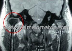 Necrose do côndilo direito visto em uma RM