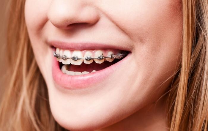 ortodontia-e-atm