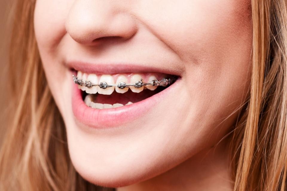 A Ortodontia e a ATM