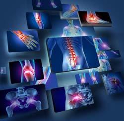 A Inflamação Crônica pode ser combatida e vencida.