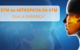 DTM ou Artropatia da ATM?