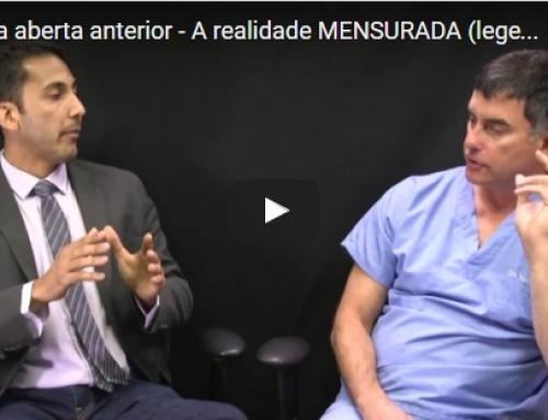 Dr. Marcelo com o Dr. Nick Yiannios do CNO, sobre as mordidas abertas e a ATM!