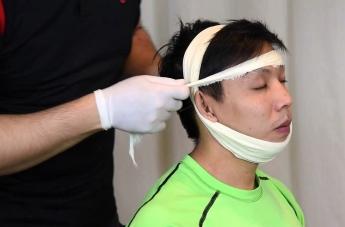 Vendaje para luxación de la mandibula